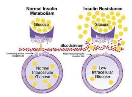 Insulineresistentie en histamine